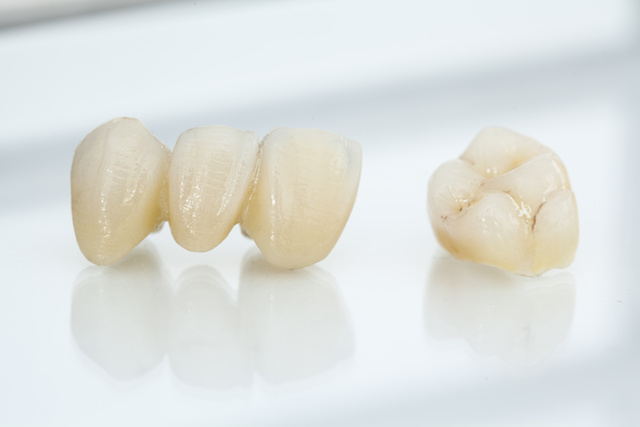 http://parksidedental.com.au/wp-content/uploads/2016/04/crown.jpg