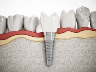 http://parksidedental.com.au/wp-content/uploads/2016/04/implant-320x240.jpg
